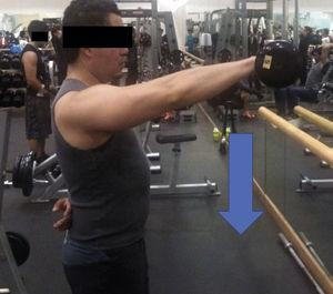 Eccentric exercise for anterior deltoids. The arrow indicates contraction direction.