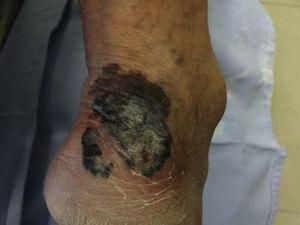 Invasive, thick and ulcerated melanoma, classified as pT4B; clinical evidence is sufficient for diagnosis.