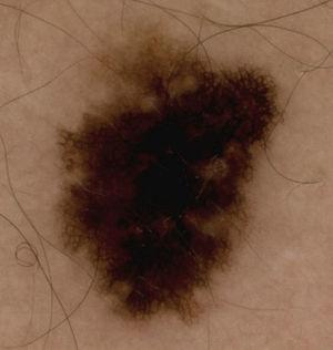 Atypical pigment network and 2-axes asymmetry in an invasive melanoma smaller than 1mm thick.