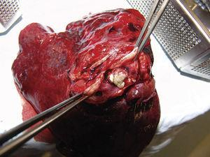In the specimen from the upper left lobectomy, a well-defined, cream-coloured 3cm×2cm×1cm nodule with haemorrhagic areas was found 0.5cm from the bronchial margin.