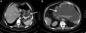 Abdominal tomography. (A) Case 1, axial plane where a pancreatic pseudocyst with transgastric drainage can be seen (arrow). (B) Case 3, axial plane with 10×20 hypodense peripancreatic collection with an average attenuation of 9 UH, compatible with liquid (arrow).