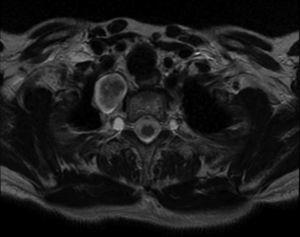 Magnetic resonance of the cervico-thoracic junction. T2 axial cut. Well-defined ovoid lesion in superior mediastinum.