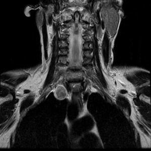 Magnetic resonance. T2 coronal sequence. Heterogeneous signal, iso/hyperintense, with capsule.