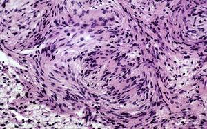 Histological image of encapsulated schwannoma.