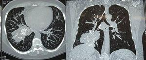 Thoracic CT scan, axial and coronal slices showing a hyperdense lesion with diffuse calcifications in its interior, in the anterior and lateral basal segments, in the lower right lung lobe.