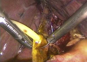 A #10 Fr T-tube placed in the choledocotomy site and fixed with Vicryl 4-0.