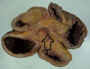 The arrow shows mesenteric fibrosis secondary to the desmoplastic reaction caused by the intestinal carcinoid.