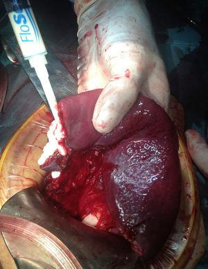 Application of haemostatic agent on the surface of the splenic resection and in a laceration of the upper splenic pole.