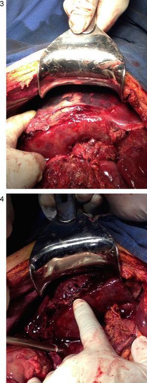 Subcapsular haematoma rupture in right liver lobe.