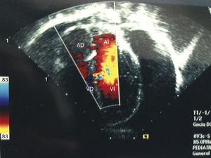 Ultrasound with radiolucent image, compatible with a pericardial effusion of approximately 500ml.