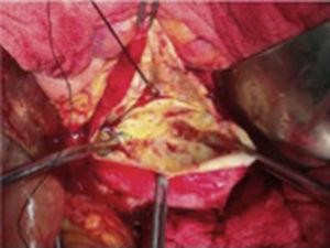 Opening the aneurysmal sac and by means of control with Fogarty 3Fr balloon catheter of the proximal and distal ostium; an endo-aneurysmorrhaphy was then performed.