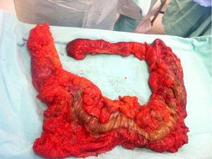 Product of colonic resection, with extensive necrosis of the caecum, ascending and transverse colon.