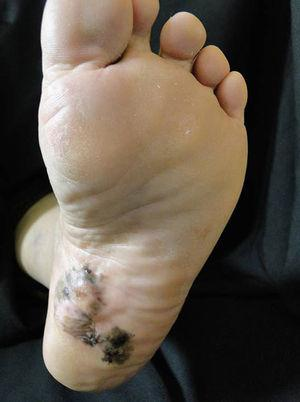 Patient with plantar acral melanoma.