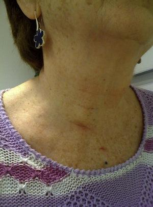 Aesthetic result one month after surgical intervention.