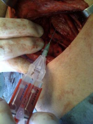 Placing the Tissucol® fibrin glue.