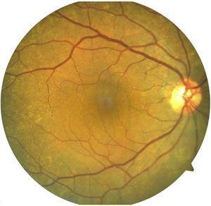 Clinical image of posterior pole of the right eye.