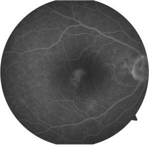 Fluorescein angiography of the right eye in the later stages.
