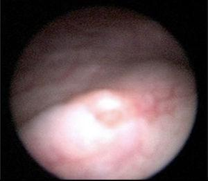 Left ureteral meatus of normal appearance.