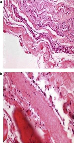 Histopathological study with haematoxylin–eosin. (a) The slice is shown enlarged 20×. (b) The slice is shown enlarged 40×.