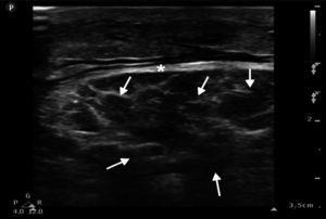 Ultrasound image in 2D of the left rectus femoris muscle in longitudinal section showing abundant anechoic areas, compatible with oedema (arrows), and increased diameter of the muscle fascia (*).