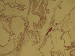 Photomicrography: multiple cysts lined by a single layer of cubic or flattened cells, with basal nuclei, whose wall comprises a fibro-adipose stroma with mild vascular congestion and foci of chronic and non-specific inflammatory changes (haematoxylin–eosin 10×).