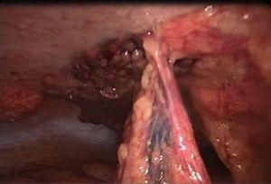 Diagnostic laparoscopy showing adipose tissue necrosis.