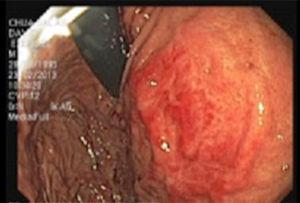 Endoscopic study showing pulsing extrinsic compression at the level of the third portion of the duodenum.
