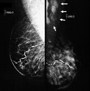 Oblique-lateral mammography showing diffuse thickening of the skin of the left mammary gland, a dense pattern that substitutes 80% of the breast tissue and extends irregularly to the pre- and retromammary fat layers. The vascular trajectories are partially calcified. In the left axillary region multiple dense adenopathies can be seen with loss of the radiolucid centre and invasion of the adjacent soft tissues (arrows).