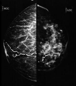 Cephalocaudal mammography showing diffuse thickening of the skin of the left mammary gland, a dense pattern that substitutes 80% of the breast tissue and extends irregularly to the pre- and retromammary fat layers. The vascular trajectories are partially calcified.