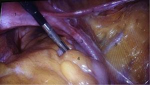 (1) Uterus, (2) round ligament, (3) pelvic infundibulum ligament, (4) rectum and (5) external iliac vessels.