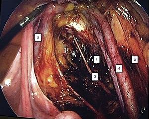 Limits of pelvic lymphadenectomy. (1) Obturator fossa, (2) genitocrural nerve, (3) obturator nerve, (4) iliac vessels, (5) urethra.
