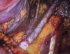 Upper limit of lymphatic dissection (2cm above the iliac bifurcation).