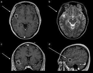 Magnetic resonance of the skull. (a) Axial section contrast enhanced T1 sequences which shows tumour with a hypointense centre and enhancement of the contrast in the shape of a ring. (b) Axial section in T2 sequence which shows a hypointense ring and with a hyperintense centre, with no perilesional swelling. (c) Coronal section contrast enhanced in T1 sequence which shows the location in the first right temporal gyrus.