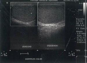 Doppler ultrasound which compares the vascular flow in both testicles.