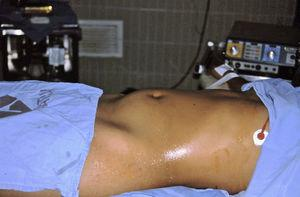 Abdomen distended due to right-sided paraovarian cyst.