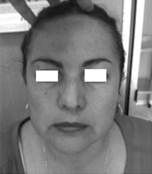 Clinical photograph of the patient with mild facial asymmetry at the expense of the left hypoglobus.