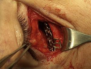Transurgical photograph showing the placement of the titanium plate prior to fixation with screws for correction of double vision.