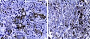 A. Epithelial immunomarkers tested positive in the areas of gland formation (cytokeratin 7). B. The solid component presents an endocrine differentiation, which is evident with the endocrine markers (chromogranin).