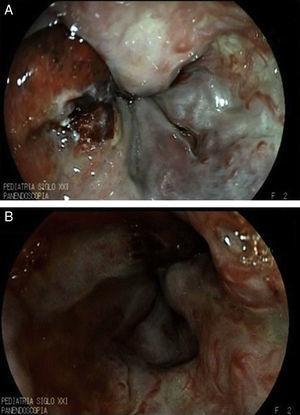 A. Post-sclerotherapy ulcer with active bleeding. B. Site of bleeding.