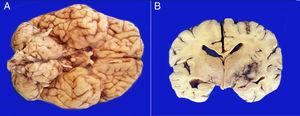 A. The base shows a tumor that bilaterally increases the volume of the pons.The tumor is light yellow and solid in appearance. B. Coronal sections of the brain show a poorly delimited neoplasm of yellow color with areas of necrosis and hemorrhage and loss of parenchyma affecting the gray nuclei of the right side base.