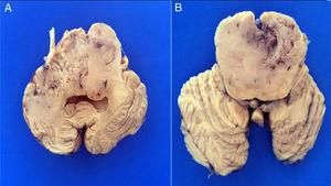 Transverse sections of the brain stem show a bilaterally infiltrating neoplasia with increased pons, midbrain and bulb volume.