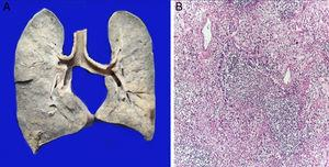 The lungs were found to be enlarged in size and weight. The surface of the cut shows areas of white consolidation (A). Histological sections show intense inflammatory infiltration of polymorphonuclear leukocytes that destroy the wall of a bronchiolum (B).
