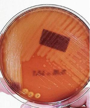 Abscess culture. Circular, translucent, of variable diameter and with smooth surface beta-hemolytic circular colonies are observed.
