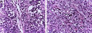 (A) Histological appearance of alveolar rhabdomyosarcoma: fibrous connective septa are forming pseudo-alveolar structures, in which neoplastic cells are embedded. (B) In some areas, they occupy the entire space forming a solid neoplasm.