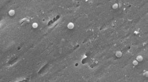 Images of the coccoid form of Helicobacter pylori. Scanning electron microscope image courtesy of Dr. Nuno F. Azevedo. LEPABE-Chemical Engineering Department of the Faculty of Engineering at the University of Oporto (Portugal).