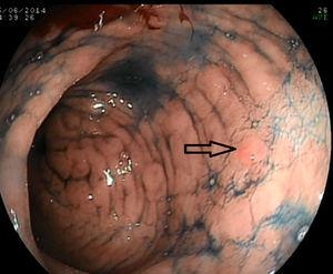 Bichromoendoscopy reveals a previously undetected lesion (0-IIa) on the posterior wall of the antrum.