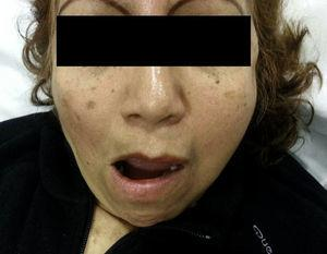 Left unilateral temporomandibular dislocation. The patient's inability to close her mouth can be observed.