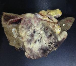 Liver mass with an infiltrative neoplastic appearance with necrosis and haemorrhage.