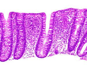 Lymphocytic colitis. Mucosa with normal structure, with increased inflammatory cellularity in the lamina propria and no subepithelial collagen accumulation, showing damage and disruption of the surface epithelium with marked transepithelial lymphocytic exocytosis.
