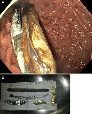 (A) Endoscopic view of gastric cavity containing the foreign bodies. (B) Foreign bodies.